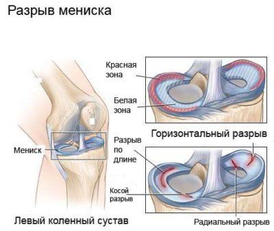 fájó fájdalom a vállízületben és a karban görcsök térd artrózissal