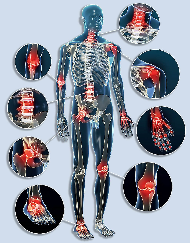 segíti az ízületek életszabályait az artrózis esetén gyógyszerek ízületi fájdalom, chondro injekciók