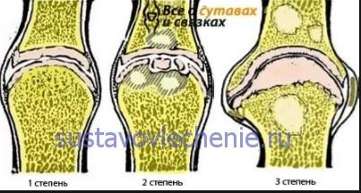 a térd deformáló gonartrózisa 1 fokos kezelés