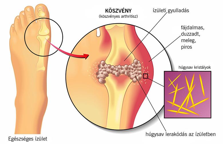 a bal láb ízületi gyulladása
