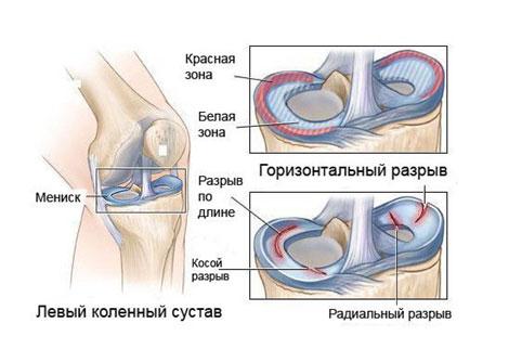 a bal térdízület krónikus meniszkuszi elváltozása ízületi fájdalom, hogyan kell harcolni