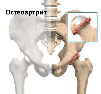 a boka ízületének 2. stádiuma artrózisa és vállízület fájdalomkezelés