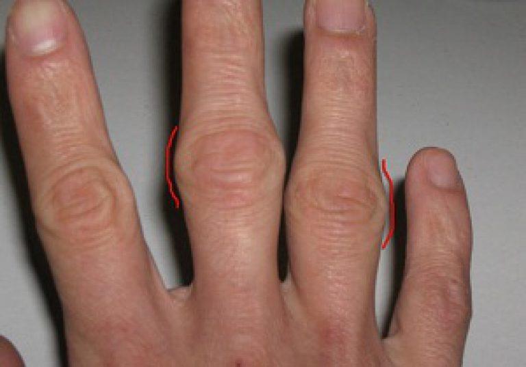 a csípőízület deformáló artrózisa 3. stádiumú kezelés fájdalom a könyökízület csökkentése után