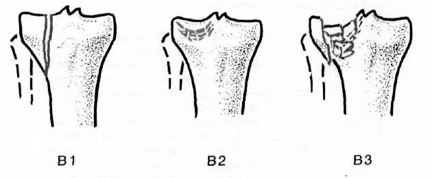 a csukló ízülete meghajolt ízületi összehúzódás és kezelés