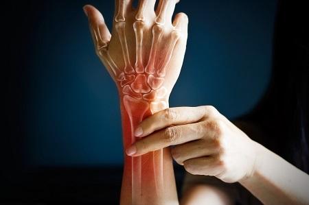 a csuklóízület különösen hirtelen mozgással fáj új kezelések a csípőízületi gyulladásról