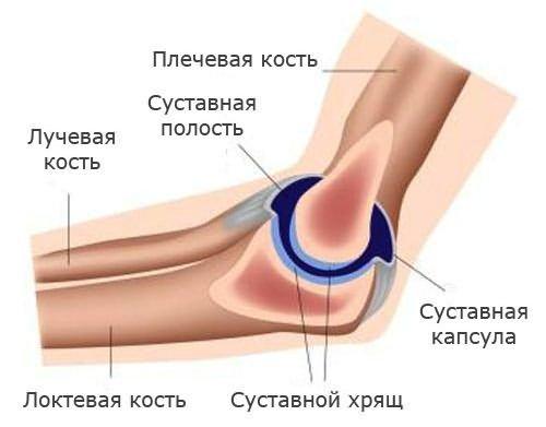 csípőízület coxitis betegsége térd artrózisának előrejelzése