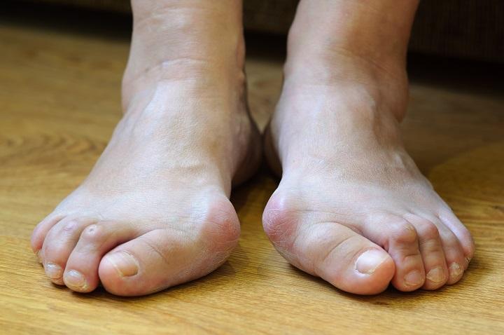 a kezelés fáj a nagy lábujj ízületét