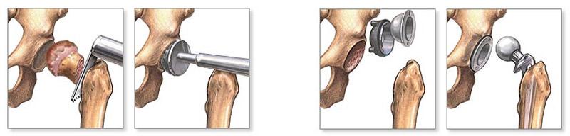 a könyökízületek deformáló artrózisa 1 fok a vállízület fáj a sérülés után
