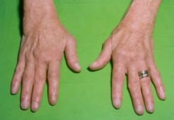 a kéz reumás ízületi gyulladása, mint a kezelésére