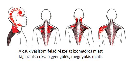 a legjobb kenőcs a nyaki osteochondrozishoz könyök fájdalom ellen