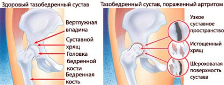 a medence lábainak ízületei fájnak ízületi fájdalom magas koleszterinszinttel