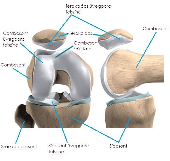 a kézízületek osteoarthrosisának kezelése. mi a teendő, ha a csípőízületeket fáj a kezelés