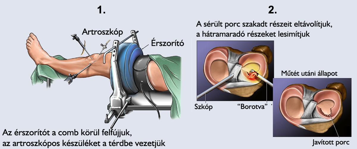 a térd artrózisának kezelése műtét nélkül