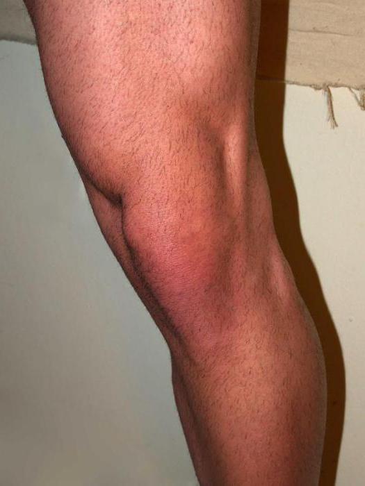 ízületi ízületi rák kórtörténet rheumatoid arthritis a csípőízület
