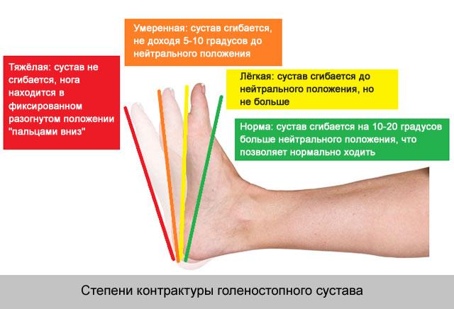 a térd ízülete 1-2 fok