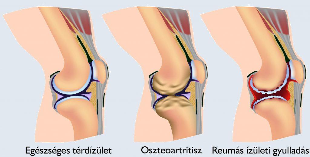 a térdízület 3. fokú artrózisa csípő-osteopenia tünetei és kezelése