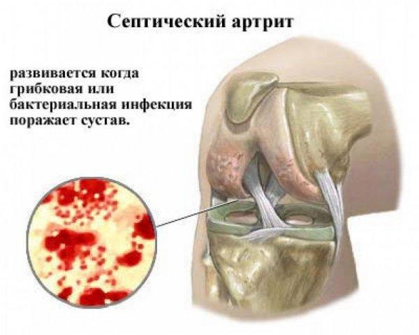 hogyan lehet enyhíteni a reumás ízületi fájdalmakat mi a csípőízület fáj