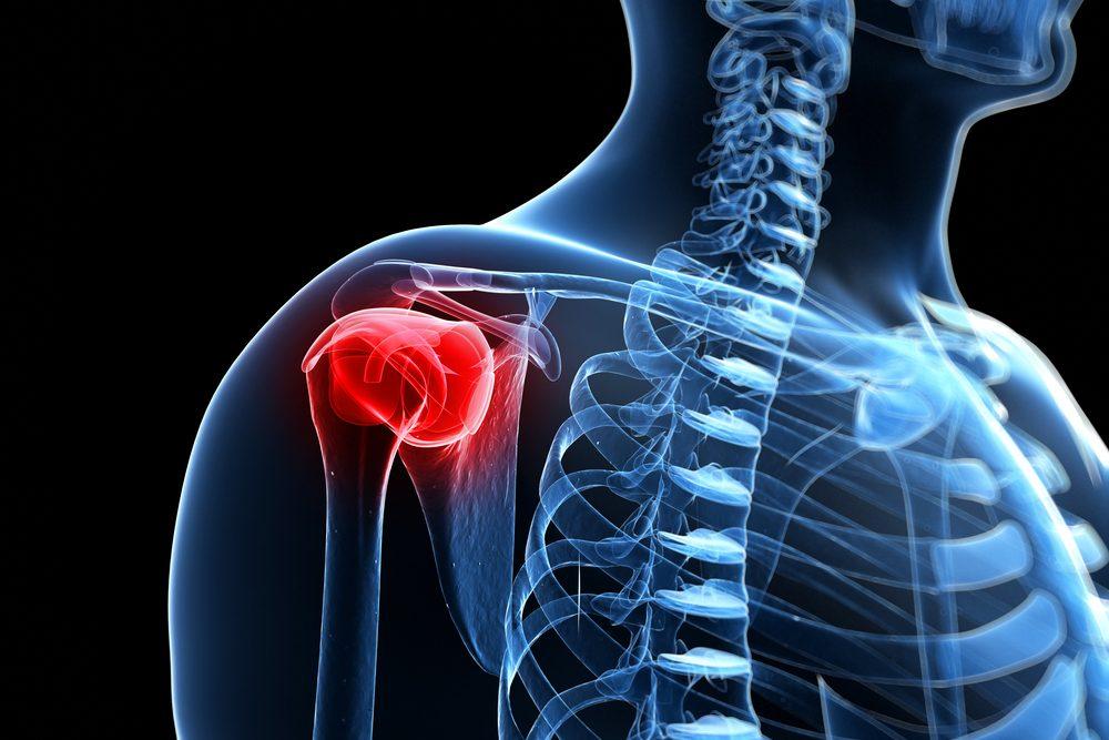 a vállízület 3. fokú artrózisának kezelése