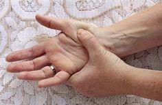 lehet keresni ízületi gyulladást, ha megreped az ujja