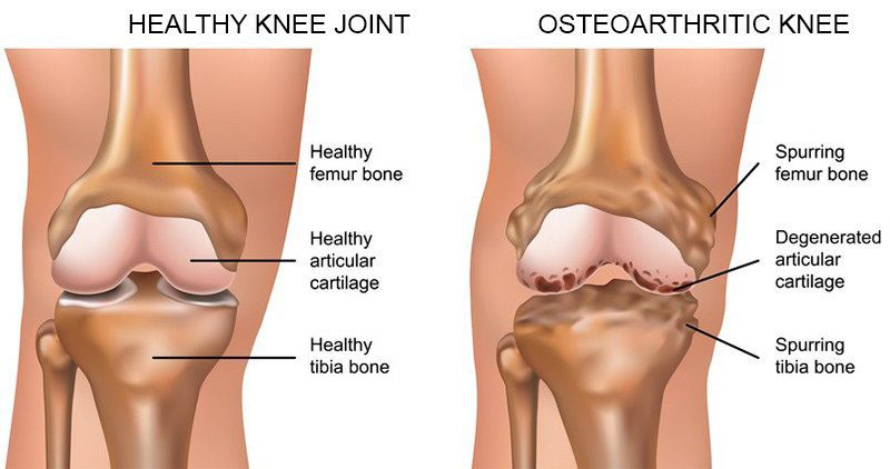 a csípőízület deformáló artrózisának kezelése
