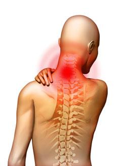 Nyaki myelopathia mcb. Myelopathia - leírás, okok, kezelés. Alapvető gyógyszerek listája