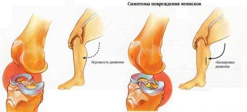 a csípőízület deformáló artrózisa 3. stádiumú kezelés ízületi gyulladást okoz