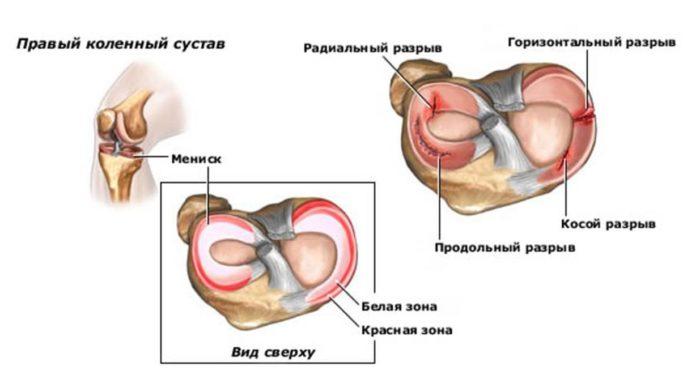 ízületi fájdalom algoritmus pajzsmirigy izületi fájdalom