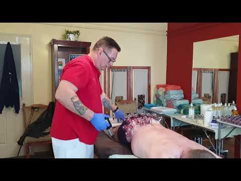 Emberi anatómia - Felső végtagi izmok