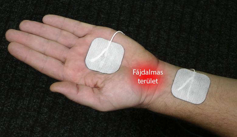 készülékek térdízületi fájdalmakhoz