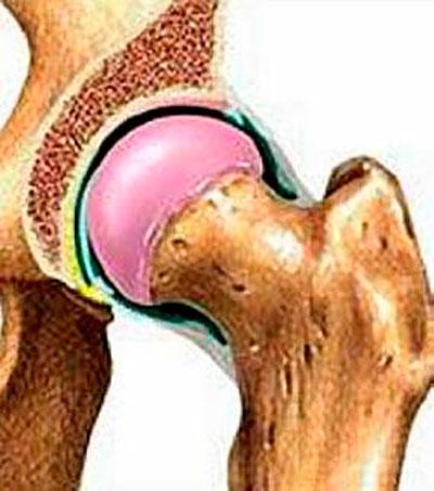 aertális ízületi fájdalmak fájdalom gerinc ízületek