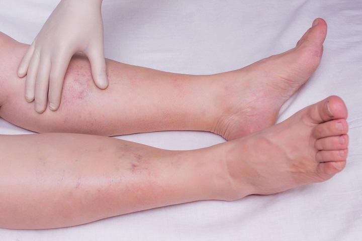 akik gyógyítják a boka ízületi gyulladását