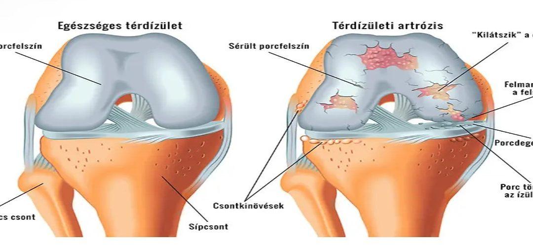 artrózis folyadék a térdízületben ízületi fájdalom basszussal