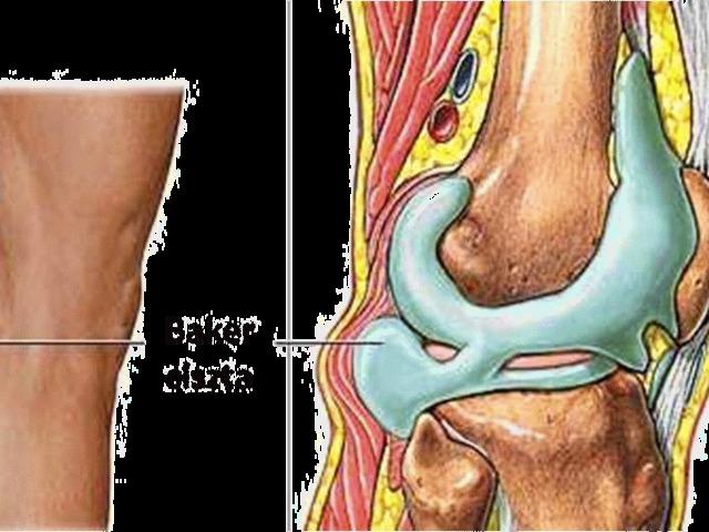 az artrózis kezelése a kezdeti szakaszban milyen fáj az egész test ízületei