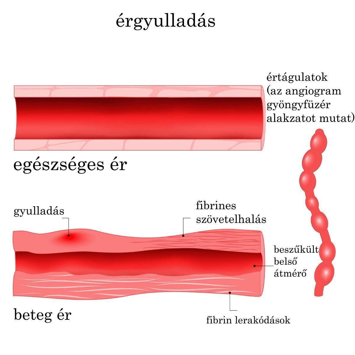 váll artrózis kezelésére szolgáló készülékek mágnes a térdízületi gyulladás kezelésében