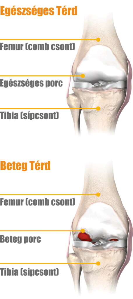 darsonvalis artrózis kezelése ami fájdalmat okoz a vállízületben