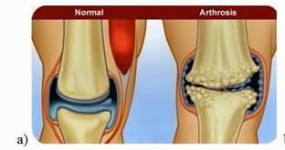 1 - 2 fokú artrózisos kezelés