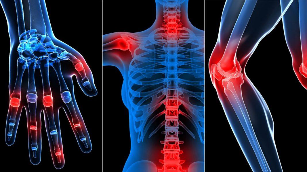 milyen ízületek és izmok fájnak csípőtörés kezelésének módszerei