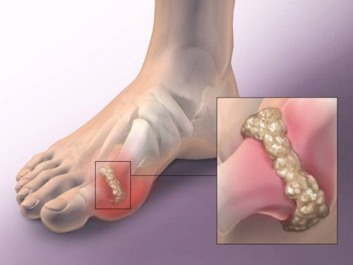 gyógyszer ízületek és szalagok besorolása duzzadt lábízület