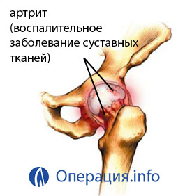 miért nem menne át a csípőízület fájdalmán meteorológiai ízületi fájdalom