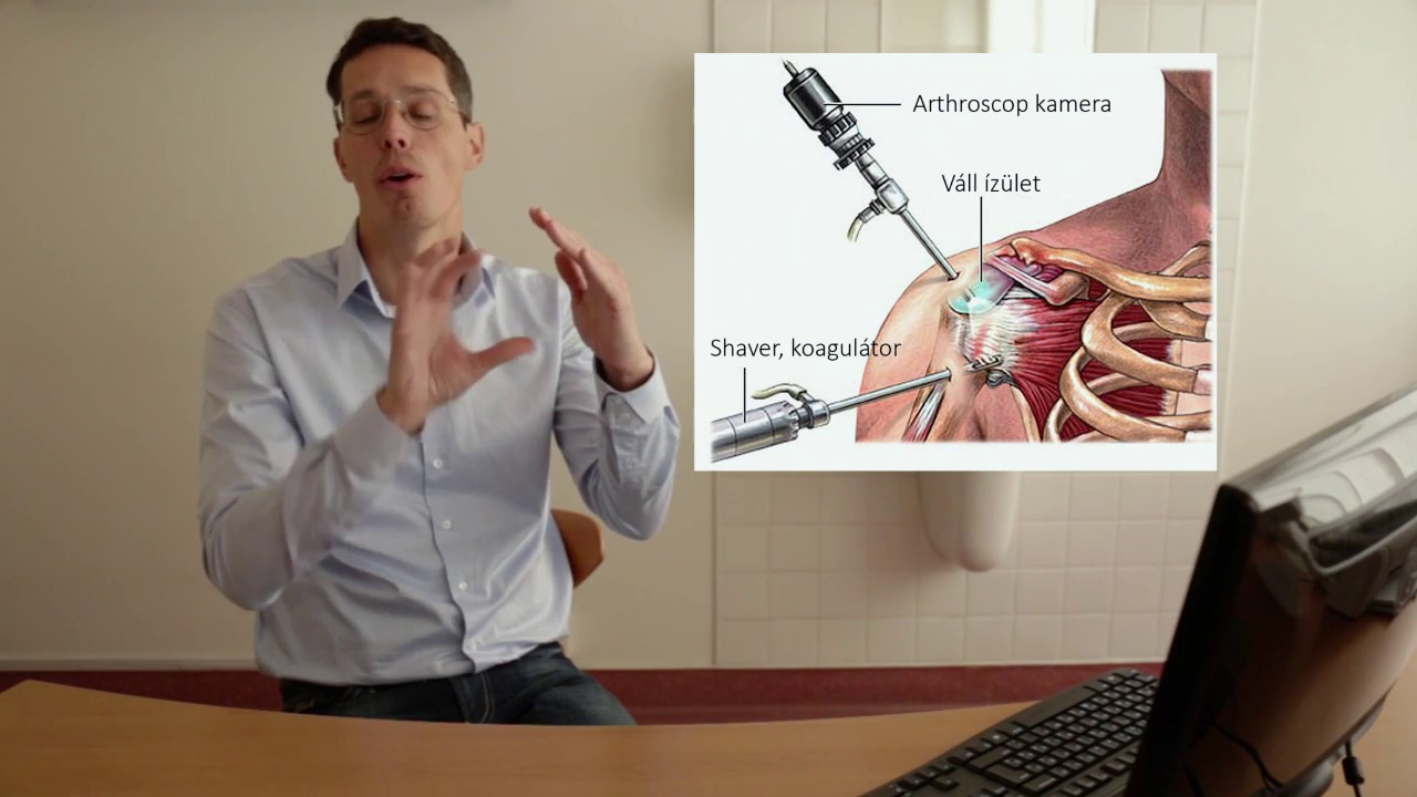 váll fájdalom ízület deformáló artrózis sebészi kezelése