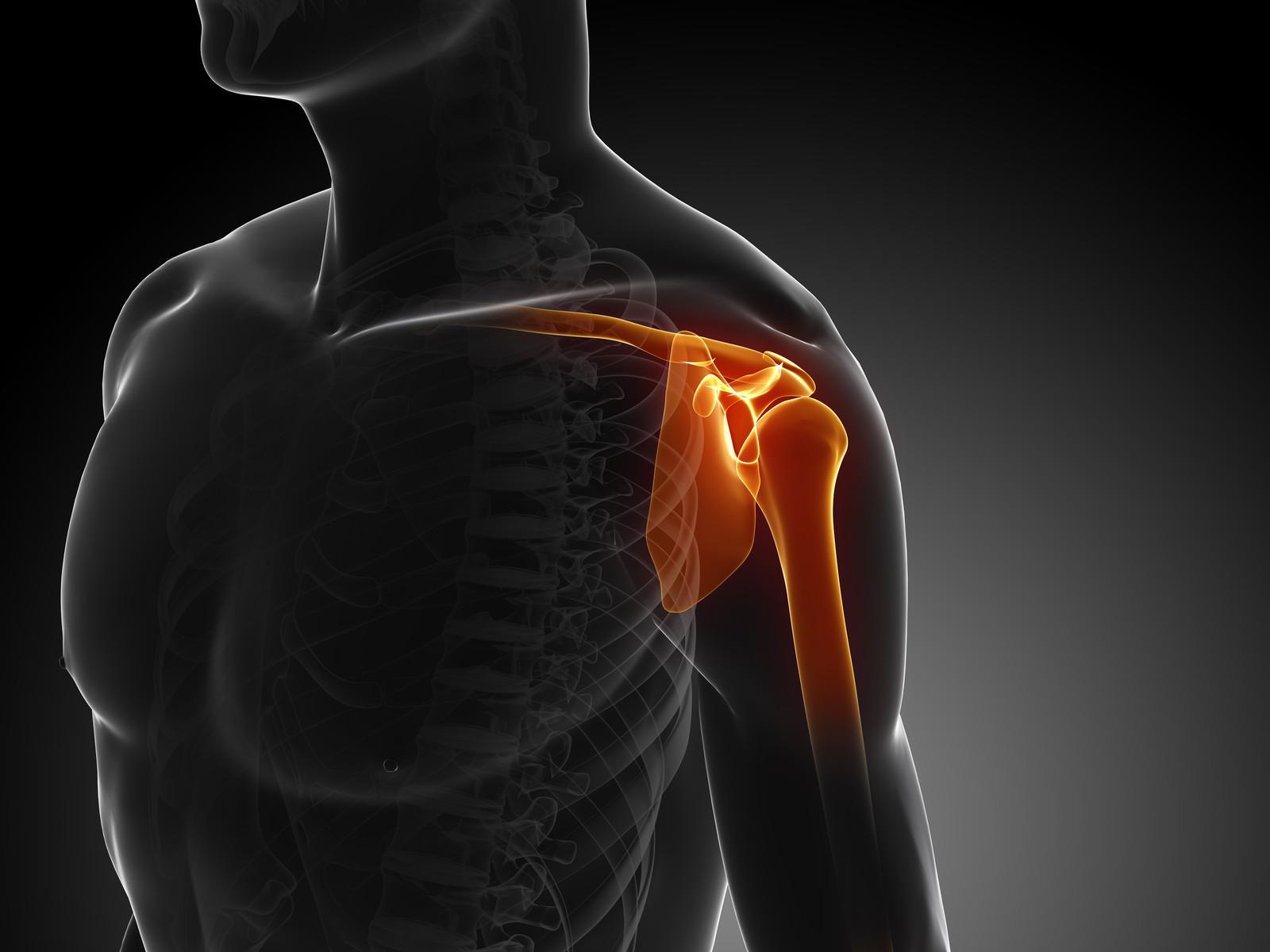 edzés után fáj a vállízületek combcsont ízületi gyulladás