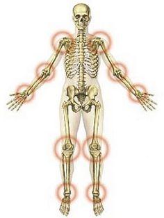 ízületi ízületi gyulladás kezelésére zselatinnal a térdízület kezelésének ismétlődő szinovitisa