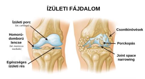 belső zsír ízületi fájdalmak esetén a térd deformált artrózisa 2 fok