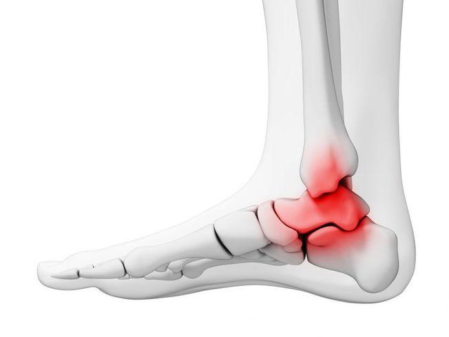 boka artrosis és kezelése hogyan kezeljük a nagy lábujj artritiszét