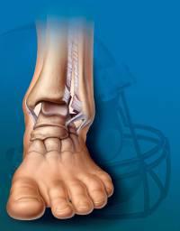boka ligamentum károsodásának kezelése