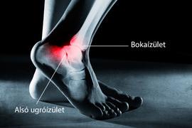 bokaízület a törés után fáj hüvelyi ízületi fájdalmak