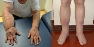 térdödéma kezelés a térdízület 1. szakaszának artrózisa