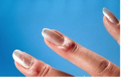 az interfalangeális ízületek kisujjú artrózisa