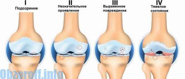 segít az ízületi fájdalmak kezelésében gyógyszerek térdízületekre