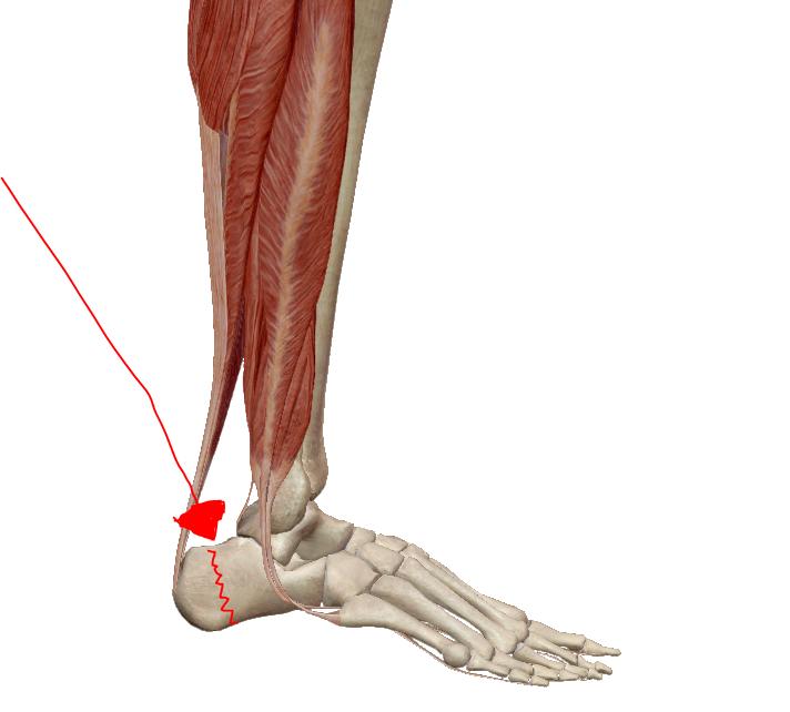 hatékony kenőcsök a csípőízület fájdalmára